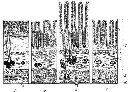 Схема строения стенки